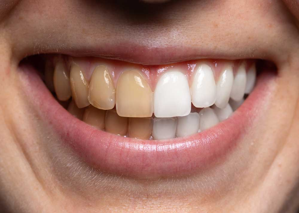 remove coffee stains on teeth before after